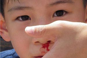 Mẹo làm ngừng chảy máu cam tại nhà hiệu quả