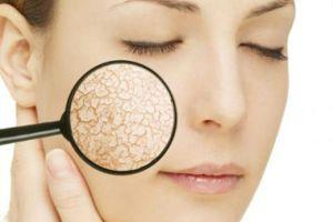 Bật mí 2 cách đắp mặt nạ cho da khô trắng hồng mịn màng