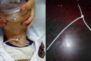 Bé trai 6 tuổi ở Hà Nội nguy kịch vì vòng dây nhựa mang đến lớp