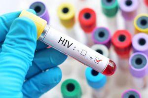 'K=K': Thông điệp làm giảm sự kỳ thị và phân biệt với người nhiễm HIV