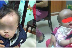 Mừng thầm khi thấy con đầu to, ít khóc, mẹ không ngờ đó chính là dấu hiệu bệnh nguy hiểm