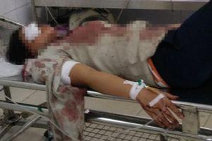 Bắc Giang: Người phụ nữ bị chồng chém trọng thương