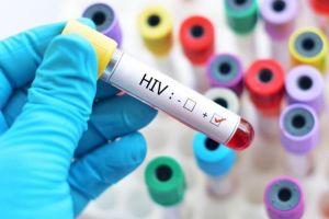 Chúng ta có thể chữa được HIV vào năm 2020?