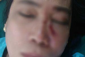 Dừng đèn đỏ, một giáo viên bị ném đá vào mặt