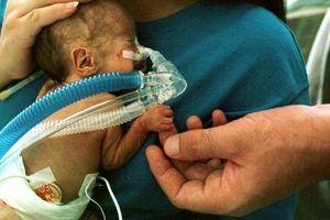 Nhiễm độc sữa mẹ được hút ra từ máy hút sữa, bé sơ sinh mắc bệnh viêm màng não