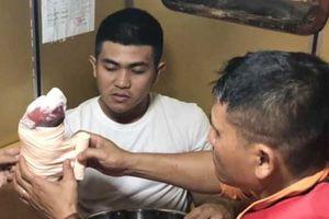 Khánh Hòa: Cứu thủy thủ tàu hàng Hi Lạp bị dập nát bàn tay trên biển Nha Trang