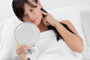 6 cách trị mụn tự nhiên cho bà bầu làn da khỏe khoắn