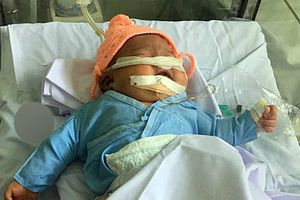 Bé gái sơ sinh bị gãy tay khi vừa chào đời