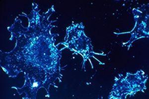 Cân trọng lượng tế bào ung thư để đo tốc độ tăng trưởng khối u