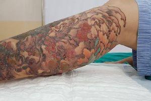 Xóa hình xăm bằng laser, bệnh nhân bị hoại tử chân