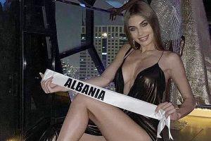 Hoa hậu Hoàn vũ Albania bị chỉ trích tạo dáng phản cảm