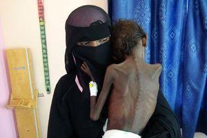 Cơ hội hòa bình đến muộn ở Yemen