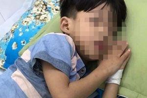 Thông tin bất ngờ về bé trai tử vong sau 1 tháng bị chó cắn ở Quảng Nam