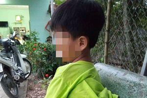 Tạm đình chỉ 15 ngày cô giáo Long An đánh học sinh khuyết tật bầm tím
