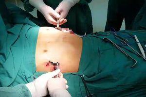 Liệu pháp đột phá 'cứu cánh' cho bệnh nhân bị lõm ngực