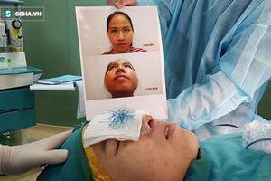 Bác sĩ thẩm mỹ khiến hàng chục bệnh nhân biến dạng mặt
