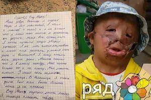 Nhói lòng bức thư gửi ông già Noel xin 'một khuôn mặt mới' của cậu bé bị lửa hủy hoại toàn gương mặt