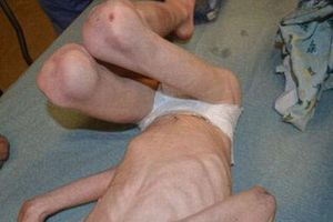 Cậu bé hóa 'bộ xương di động' vì mẹ kế bạo hành