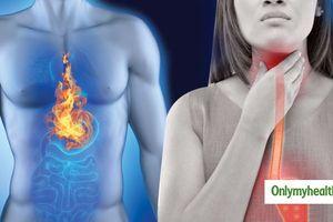 Cách tự nhiên điều trị trào ngược axit tại nhà