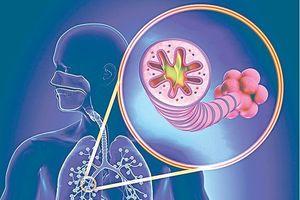 Căn bệnh nguy hiểm do thời tiết lạnh, chỉ đứng sau tim mạch và ung thư