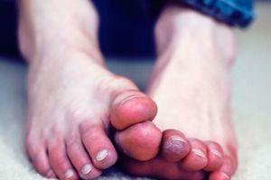 Chuyên gia khuyến cáo, giữ ấm bàn chân mùa đông như bảo vệ trái tim mình