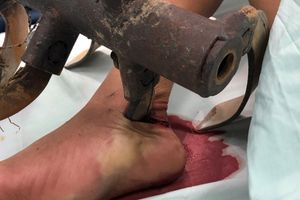 Phẫu thuật lấy lưỡi máy cày cắm sâu vào chân một bệnh nhân