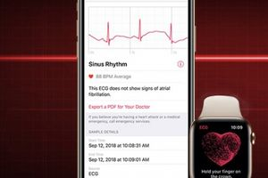 iPhone ế, Apple tung quảng cáo Apple Watch rầm rộ