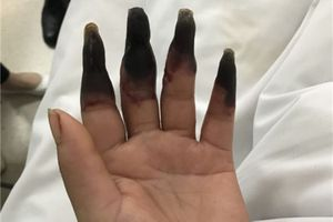 Hai bàn tay bị hoại tử đen sì vì lý do nhiều người vẫn hay mắc phải
