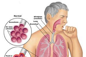 Bệnh phổi tắc nghẽn mạn tính: Nguyên nhân gây tử vong thứ 4 thế giới