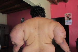 'Dị nhân' Peru sở hữu bắp tay 74 cm