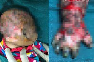 Bà ra vườn cho lợn ăn, bé 10 tháng tuổi ngã vào bếp lửa bị bỏng nặng
