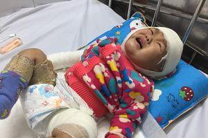 Bé gái 10 tháng tuổi ngã vào bếp lửa bị bỏng nặng