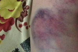 Đắk Lắk: Nghi vấn giáo viên đánh bầm tím mông học sinh lớp 4