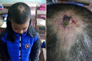 Vụ em bé 10 tuổi bị ni cô bạo hành ở Thanh Hóa: Cơ quan Công an vào cuộc?