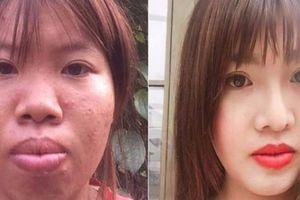 Phượng 'Thị Nở' tái xuất xinh đẹp sau 2 tháng nghi biến chứng thẩm mỹ