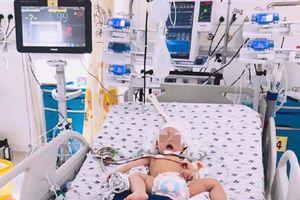 4 giờ chạy đua với tử thần cứu sống bé trai 8 tháng tuổi xuất huyết não cấp không rõ nguyên nhân