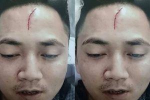 Hà Nam: Dùng cốc nước thủy tinh đánh vào đầu bạn, lĩnh 30 tháng tù