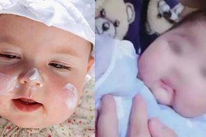 Bé gái mới 1 tuổi bị chậm phát triển vì bố mẹ bôi kem ngoài da cho bé