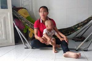 Đánh sưng má bé 19 tháng tuổi, bảo mẫu nói dối bé ngã cầu thang