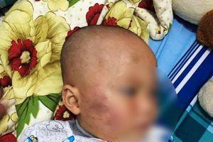 Bảo mẫu tát trẻ sưng mặt ở Vĩnh Long: Không có sự thỏa thuận nào