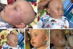 Xử lý nghiêm vụ bảo mẫu tát liên tục vào mặt bé trai 19 tháng tuổi
