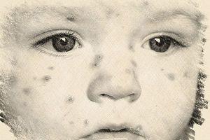 Nguyên nhân, triệu chứng và cách điều trị bệnh Rubella