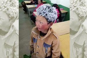 Cậu bé tóc đóng băng đổi đời sau một năm nhờ bức ảnh 'dậy sóng'
