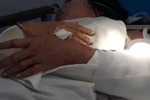 Kỳ tích: Cánh tay đứt lìa khỏi cơ thể nữ sinh trên đèo Hải Vân được ghép nối