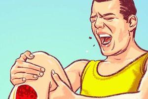 7 dấu hiệu cảnh báo tắc nghẽn động mạch gây đột quỵ chúng ta thường bỏ qua