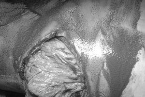 Dạ dày 'bắn' lên khoang ngực nam thanh niên sau cú tai nạn