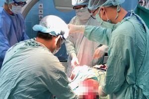 Nam thanh niên nhập viện với 2 bàn chân đứt lìa do tai nạn lao động