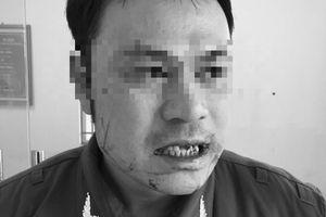 Phó Thủ tướng yêu cầu xử nghiêm vụ 'cò mồi' hành hung an ninh sân bay