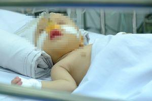 Bệnh nhi vừa chào đời đã mắc bệnh tim, bác sĩ phát hiện và phẫu thuật ngay giúp bé 'từ cõi chết trở về'