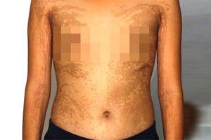 Bé gái An Giang là người đầu tiên trên thế giới mắc hai bệnh da hiếm gặp